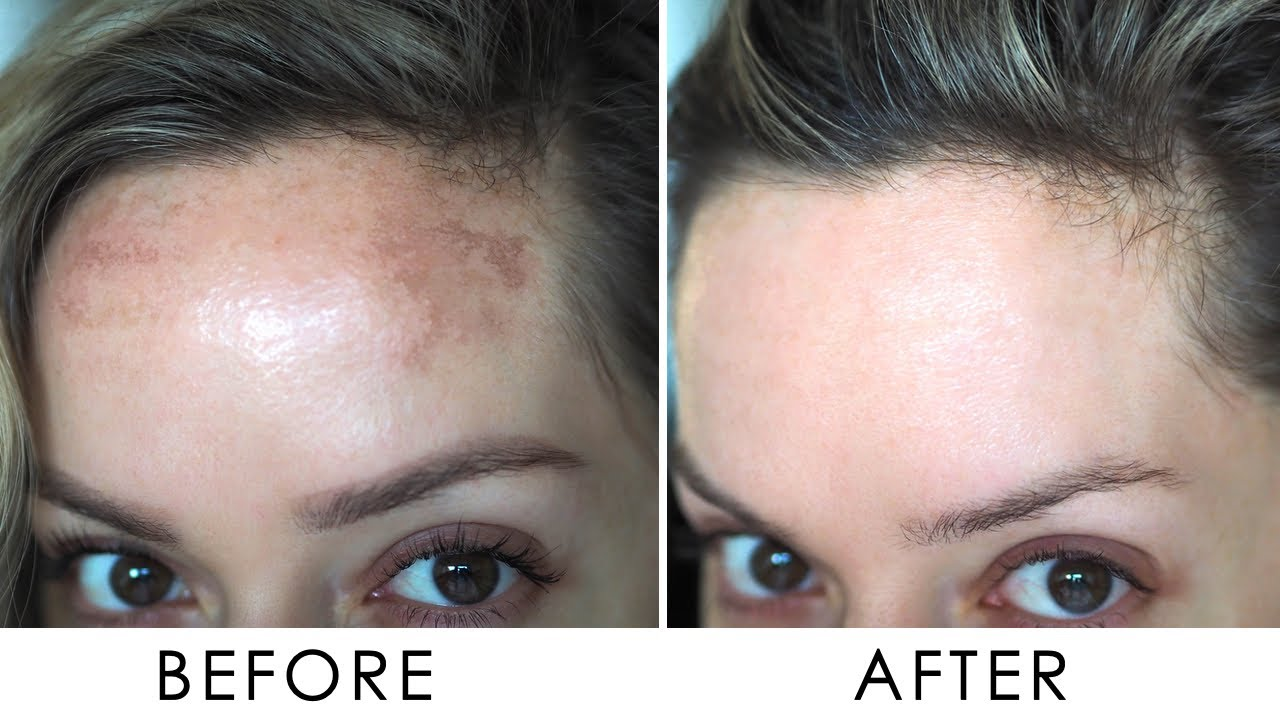 pigmentation Treatment dubai